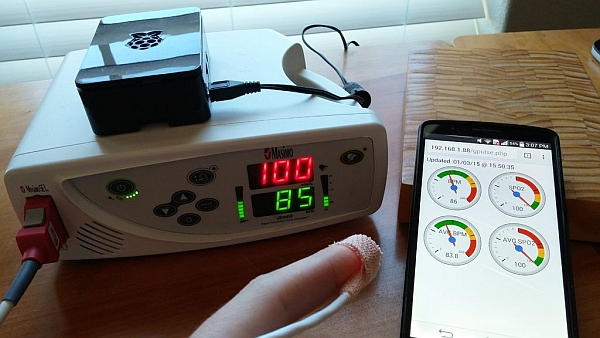 Pulse Oximeter Data Capture with Raspberry Pi