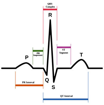 Schematic representation of normal ECG