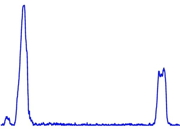 Histogram Peak Detection (2)